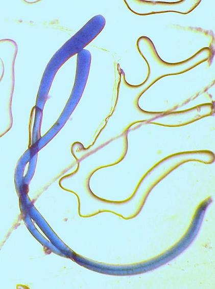 https://www.curezone.org/upload/_M_Forums/Morgellons/045.jpg