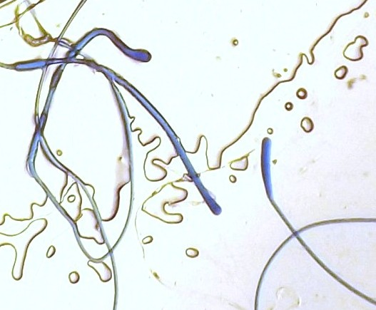 https://www.curezone.org/upload/_M_Forums/Morgellons/054.jpg