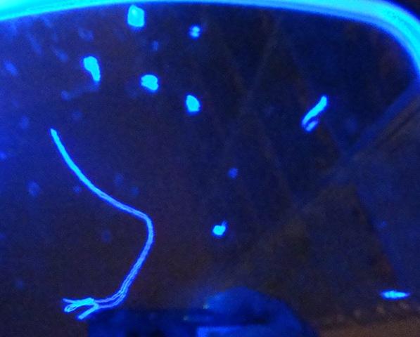 Morgellon's fibers after detox bath? at Morgellons Disease Forum