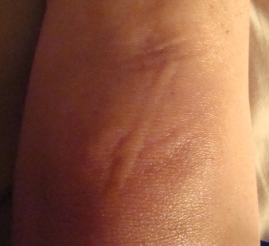 Mysterious marks after detox bath