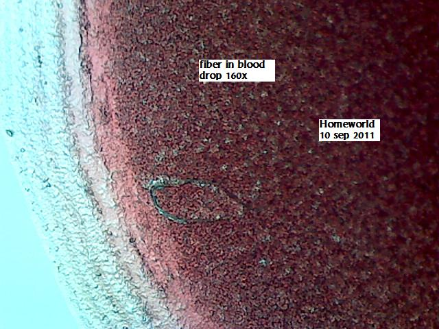 https://www.curezone.org/upload/_M_Forums/Morgellons/FHW/Blood/bldfiber10sep11.jpg