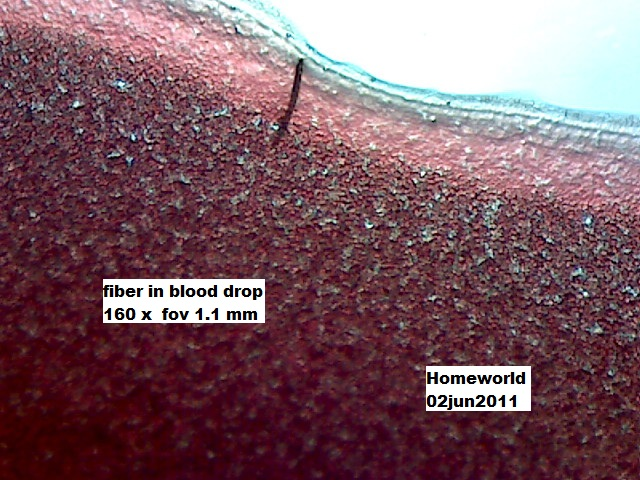 //www.curezone.org/upload/_M_Forums/Morgellons/FHW/Blood/blfiber2jun11.jpg
