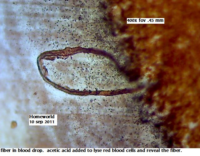 https://www.curezone.org/upload/_M_Forums/Morgellons/FHW/Blood/blodacetic10sep11.jpg