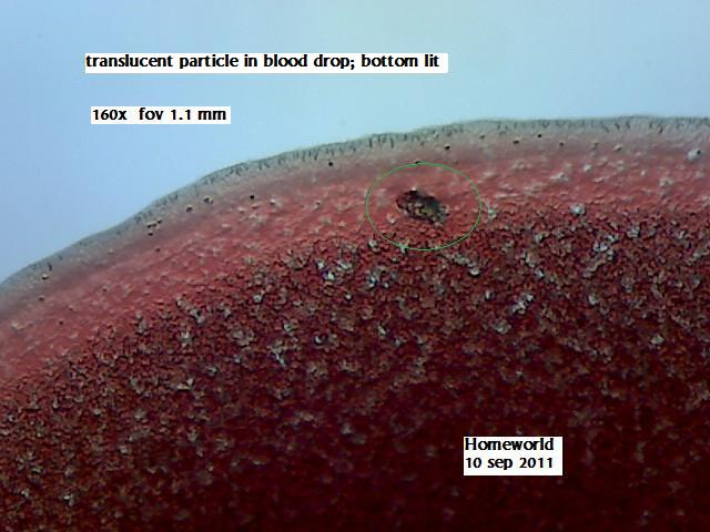 //www.curezone.org/upload/_M_Forums/Morgellons/FHW/Blood/bloodpart10sep11.jpg