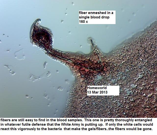 http://curezone.com/upload/_M_Forums/Morgellons/FHW/Blood/bludfiber12mar13.jpg