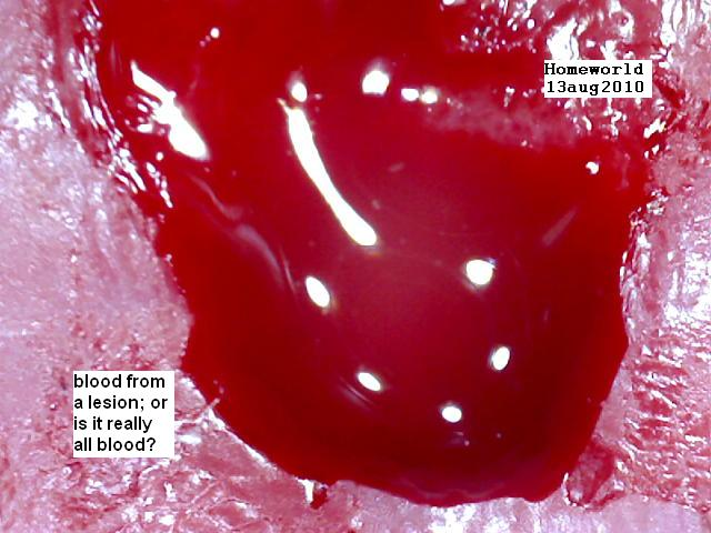 https://www.curezone.org/upload/_M_Forums/Morgellons/FHW/Blood/lesion_blood13aug10.jpg
