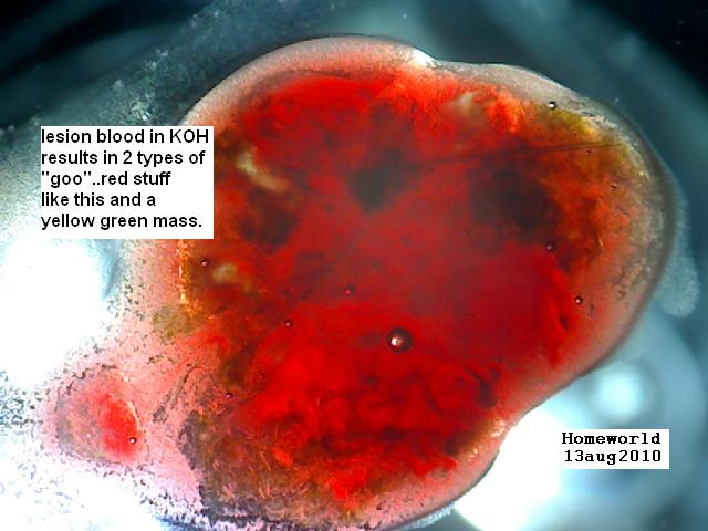 https://www.curezone.org/upload/_M_Forums/Morgellons/FHW/Blood/lesionbloodin_KOH13aug10.jpg