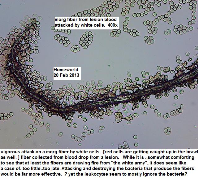 //www.curezone.org/upload/_M_Forums/Morgellons/FHW/Blood/wbc_attack20feb13.jpg