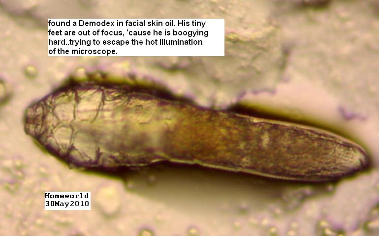 https://www.curezone.org/upload/_M_Forums/Morgellons/FHW/Demodex30may10.jpg