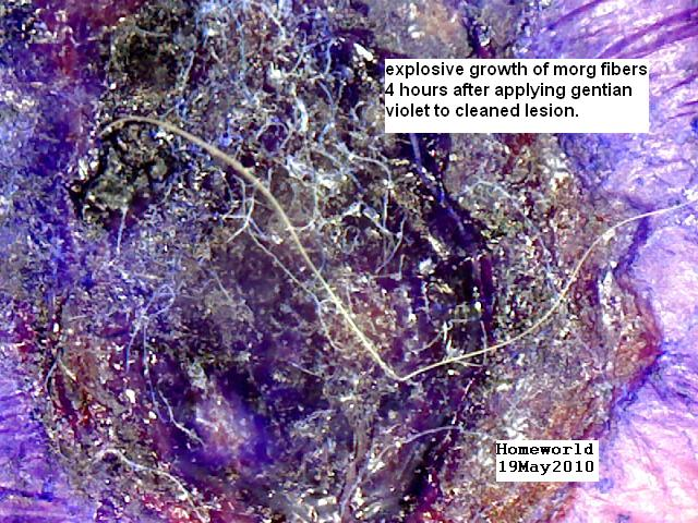 http://curezone.com/upload/_M_Forums/Morgellons/FHW/GVlesionfibers19may20.jpg