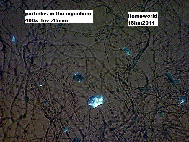 https://www.curezone.org/upload/_M_Forums/Morgellons/FHW/SORT_test/particlenet18jun11.jpg