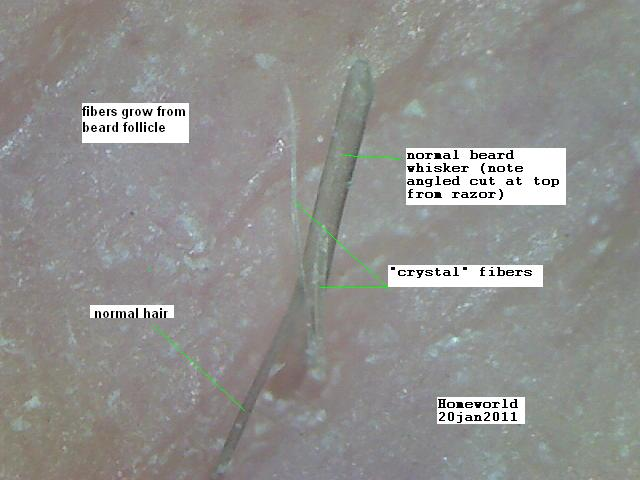 https://www.curezone.org/upload/_M_Forums/Morgellons/FHW/Skin/beardshaftfiber20jan11.jpg