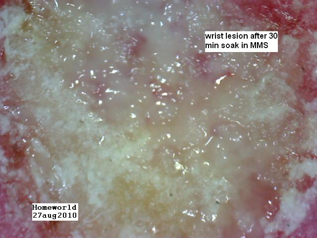 https://www.curezone.org/upload/_M_Forums/Morgellons/FHW/Skin/clo2wrist27aug10.jpg