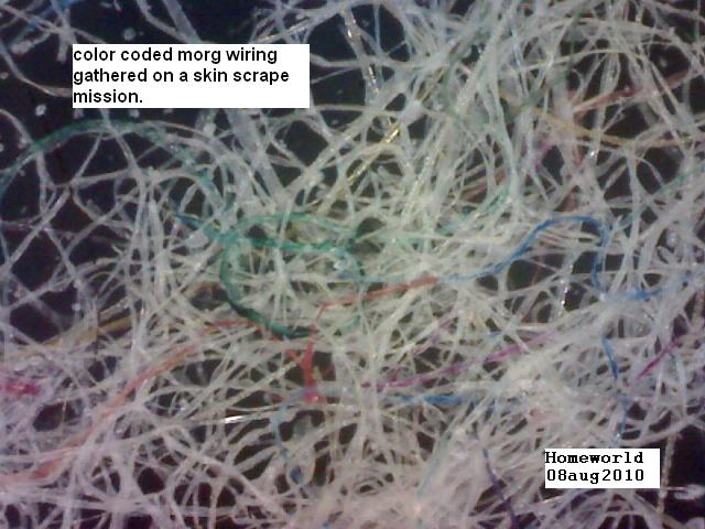 https://www.curezone.org/upload/_M_Forums/Morgellons/FHW/Skin/morgfibercolors8aug10.jpg