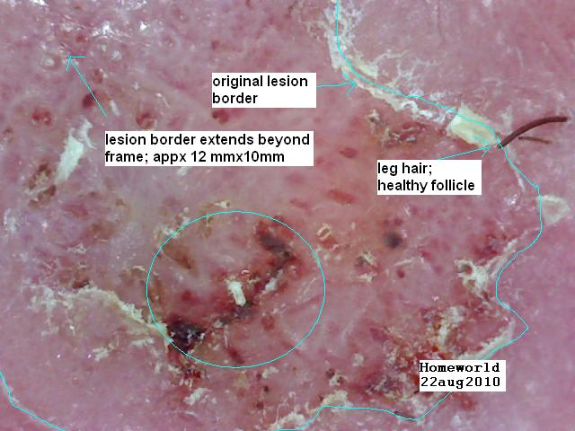 https://www.curezone.org/upload/_M_Forums/Morgellons/FHW/Skin/rtankle22aug10.jpg