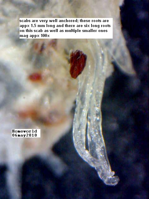 https://www.curezone.org/upload/_M_Forums/Morgellons/FHW/Skin/scabroot_6may10.jpg