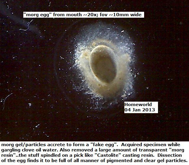http://curezone.com/upload/_M_Forums/Morgellons/FHW/Spheres/gmod_egg_4jan13.jpg
