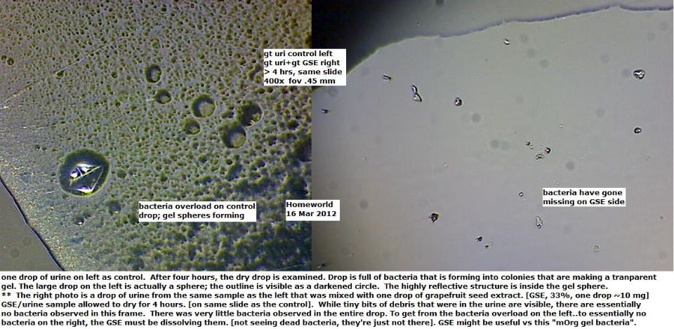 http://curezone.com/upload/_M_Forums/Morgellons/FHW/Urine/GSE16mar12.jpg