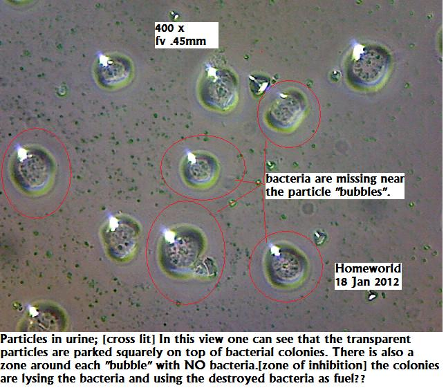 https://www.curezone.org/upload/_M_Forums/Morgellons/FHW/Urine/bactlyse18jan12.jpg
