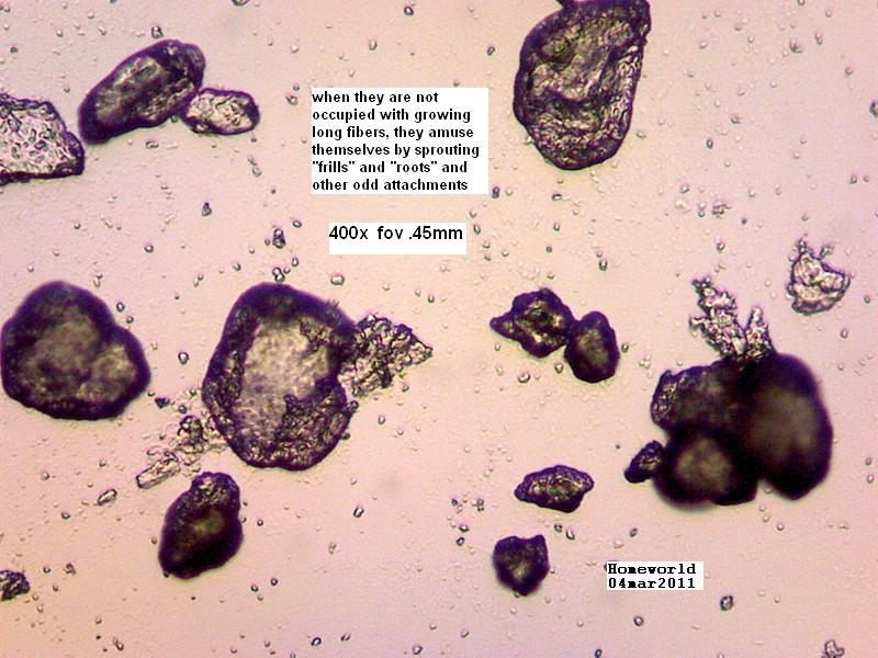 https://www.curezone.org/upload/_M_Forums/Morgellons/FHW/Urine/urine_particl/Copy_of_3.jpg