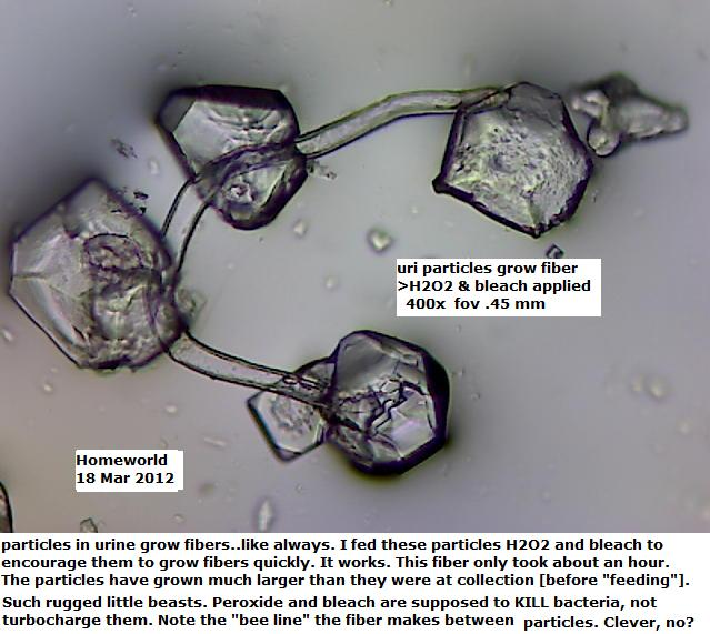 http://curezone.com/upload/_M_Forums/Morgellons/FHW/Urine/uripart18mar12.jpg