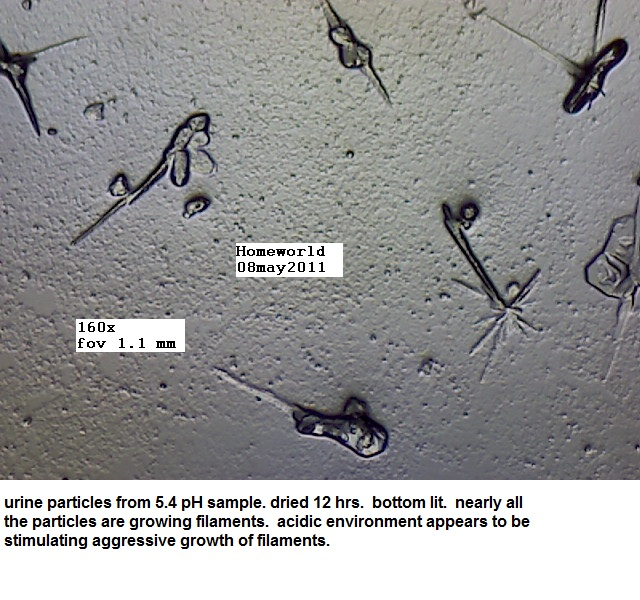 https://www.curezone.org/upload/_M_Forums/Morgellons/FHW/Urine/uripart_bl_8may11.jpg