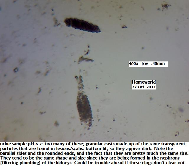 https://www.curezone.org/upload/_M_Forums/Morgellons/FHW/Urine/uripart_bot22oct11.jpg