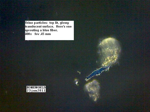 //www.curezone.org/upload/_M_Forums/Morgellons/FHW/Urine/uripart_sprouts_blue_23jan11.jpg