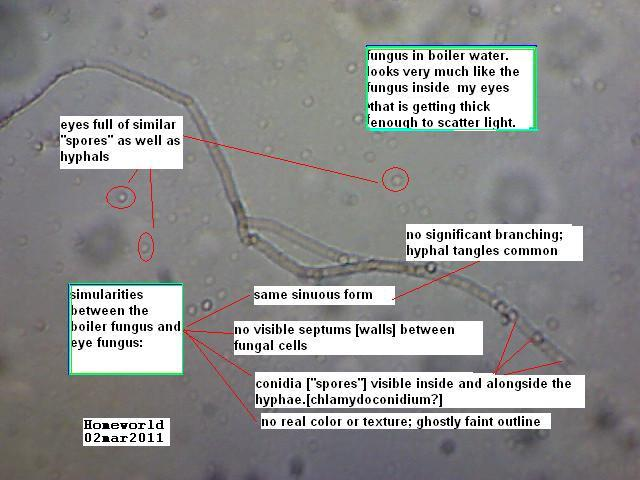 https://www.curezone.org/upload/_M_Forums/Morgellons/FHW/eyes/boiler_eye_fungus_2mar11.jpg