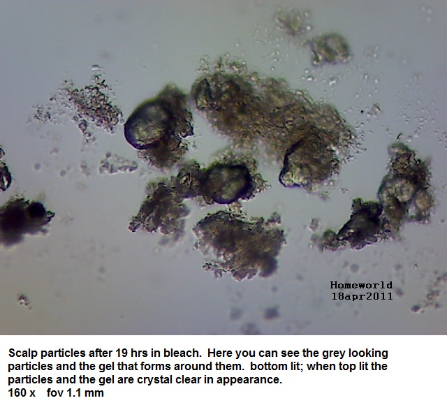 https://www.curezone.org/upload/_M_Forums/Morgellons/FHW/hair_and_scalp/greypart18apr11.jpg
