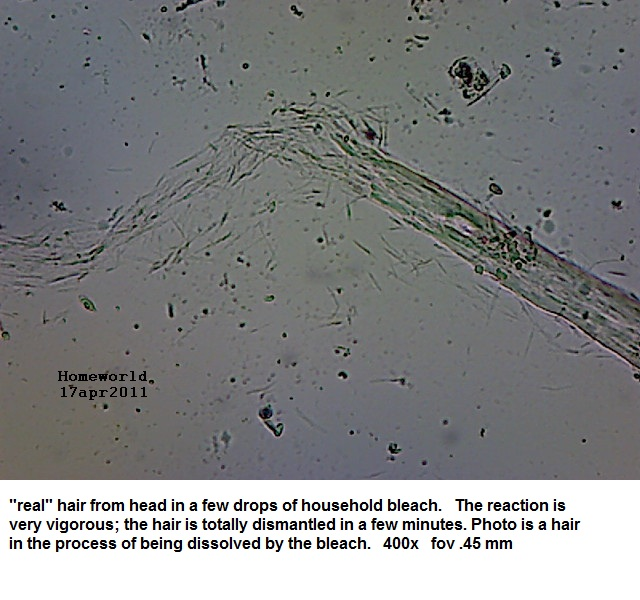 //www.curezone.org/upload/_M_Forums/Morgellons/FHW/hair_and_scalp/hairinbleach_17apr11.jpg