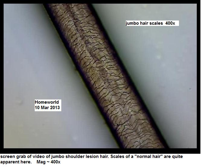 http://curezone.com/upload/_M_Forums/Morgellons/FHW/hair_and_scalp/jumbo_hair_screen.jpg