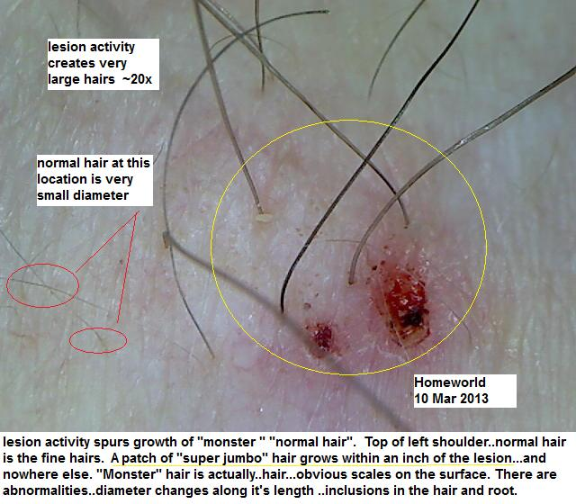 https://www.curezone.org/upload/_M_Forums/Morgellons/FHW/hair_and_scalp/jumbohair10mar13.jpg