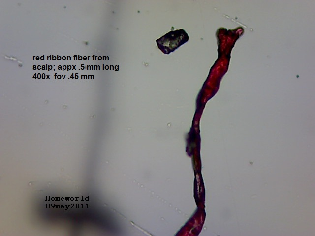 //www.curezone.org/upload/_M_Forums/Morgellons/FHW/hair_and_scalp/redribbon_9may11.jpg