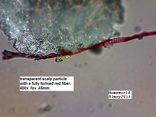 https://www.curezone.org/upload/_M_Forums/Morgellons/FHW/hair_and_scalp/scalpfiber_01may111.jpg