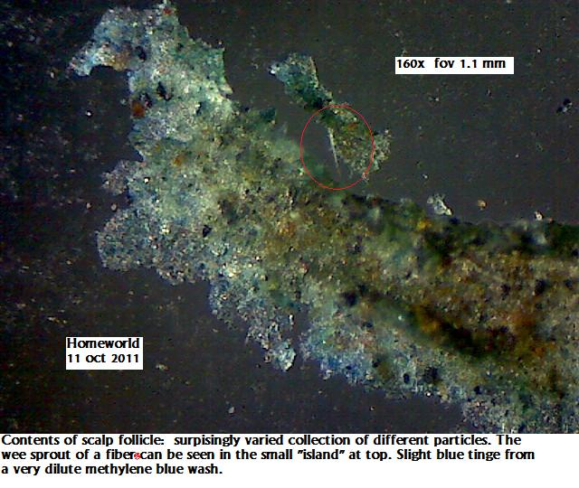 http://curezone.com/upload/_M_Forums/Morgellons/FHW/hair_and_scalp/tinysprout11oct11.jpg
