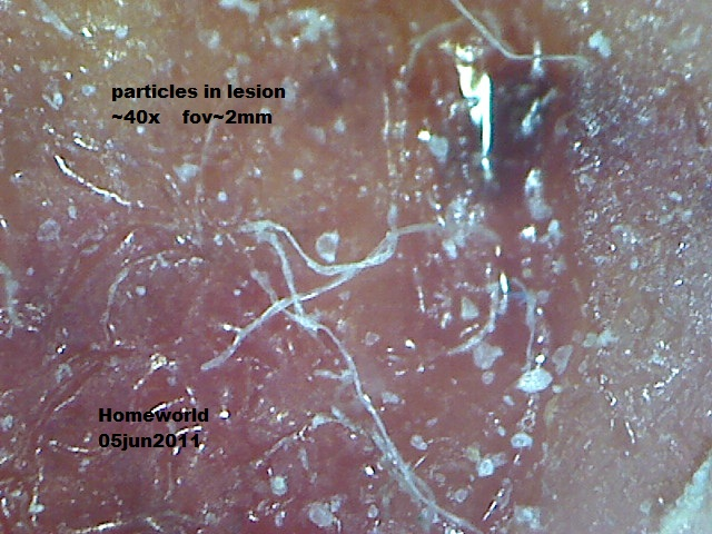 //www.curezone.org/upload/_M_Forums/Morgellons/FHW/lesion_fluid/lesparticles5jun11.jpg