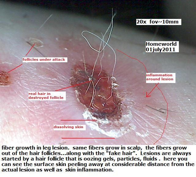 human hair hair follicle parasite