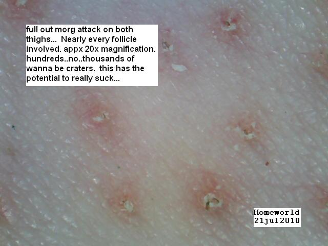 https://www.curezone.org/upload/_M_Forums/Morgellons/FHW/morgattaack21jul10.jpg