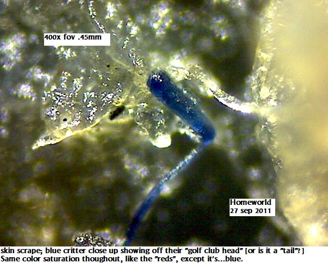 http://curezone.com/upload/_M_Forums/Morgellons/FHW/red_blue_worms/blucrit27sep11.jpg