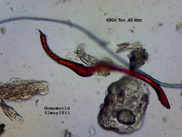 //www.curezone.org/upload/_M_Forums/Morgellons/FHW/red_blue_worms/redrw_cu2may11.jpg