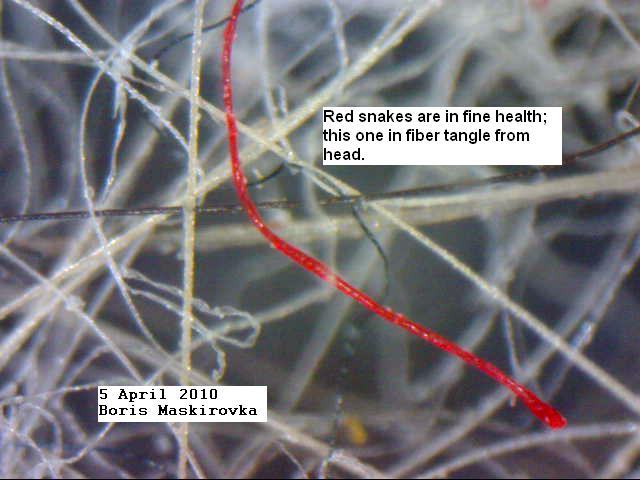 https://www.curezone.org/upload/_M_Forums/Morgellons/FHW/redsnake_5apr10.jpg