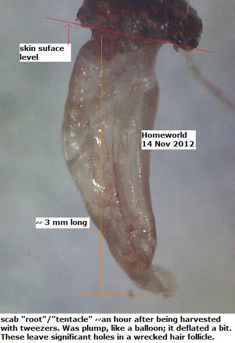 http://curezone.com/upload/_M_Forums/Morgellons/FHW/scabs/balloon14nov12.jpg
