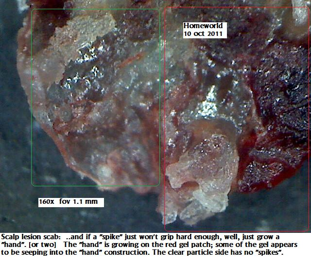 http://curezone.com/upload/_M_Forums/Morgellons/FHW/scabs/hand10oct11.jpg