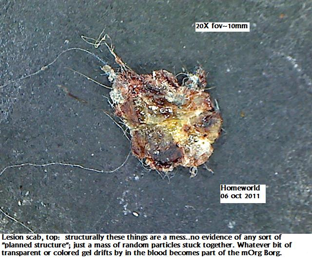 http://curezone.com/upload/_M_Forums/Morgellons/FHW/scabs/scaboverview6oct11.jpg