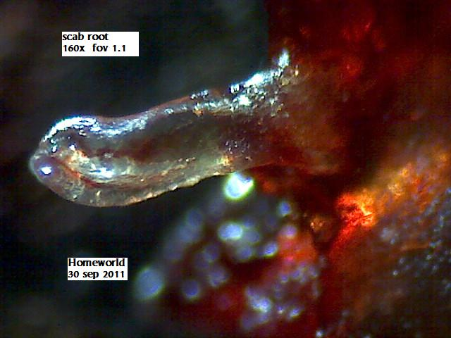 http://curezone.com/upload/_M_Forums/Morgellons/FHW/scabs/scabroot30sep11.jpg