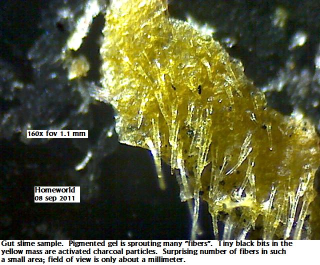 https://www.curezone.org/upload/_M_Forums/Morgellons/FHW/stool/gutmonster8sep11.jpg