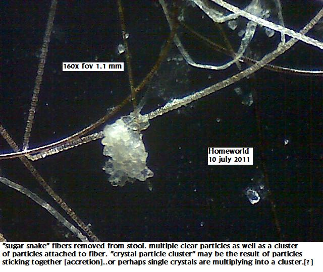 https://www.curezone.org/upload/_M_Forums/Morgellons/FHW/stool/partcluster10jul11.jpg