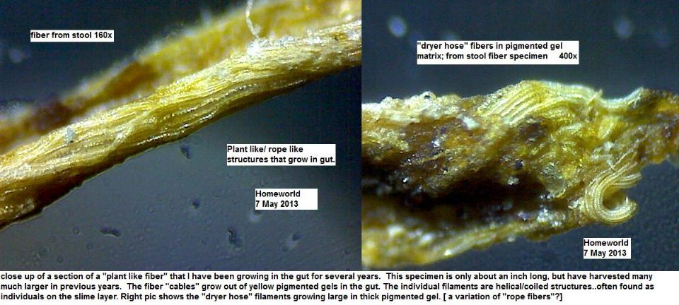 http://curezone.com/upload/_M_Forums/Morgellons/FHW/stool/ropelike7may13.jpg
