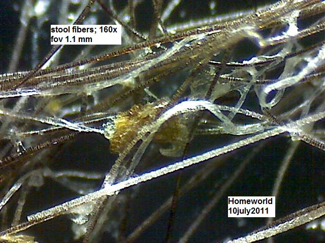https://www.curezone.org/upload/_M_Forums/Morgellons/FHW/stool/stoolfibers160_10jul11.jpg